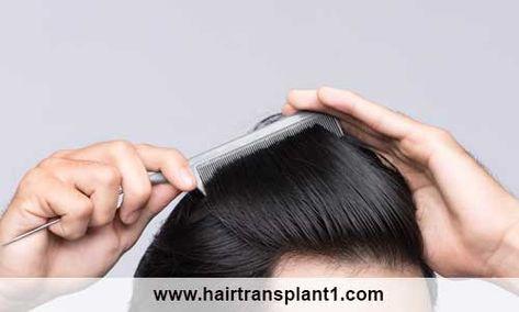الآن فور التواصل مع المركز التركي سيقوم فريقنا المتخصص بتقديم كافة عمليات زراعة الشعر لعلاج جميع مشاكل الشعر التي تواجهك Rings For Men