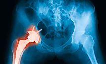 Recomendaciones Y Ejercicios Con Una Cadera Operada Protesis