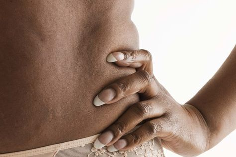 celulitis dolorosa en muslos