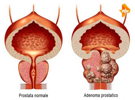 adenoma prostatico and effects 2