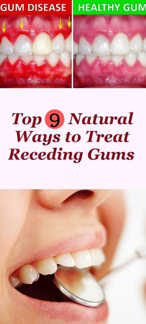 #remedies #natural #gums #tartar #beauty There are a lot of reasons why gums recede and it can become quite a health problem if this happens. If you are experiencing receding gums then you have found a great article to read. In this article you will find 4 of the best home natural remedies to help grow back your receding gums. #WhatToDoForOralCare