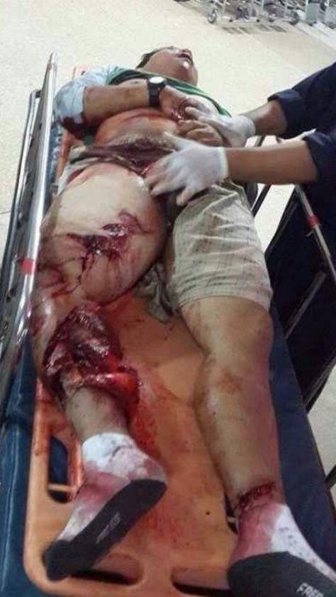 Truck wreck victim.