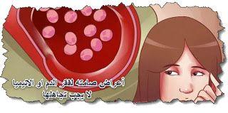 Pin On أعراض صامته لفقر الدم او الانيميا لا يجب تجاهلها