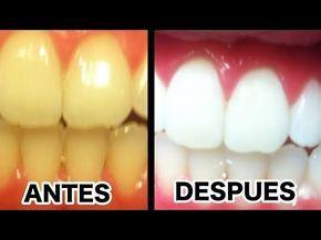 Elimina El Sarro Y Blanquea Tus Dientes En 15 Min Con ESTA Receta Que Un  Dentista JAMÁS Te? | Blanquear dientes, Blanqueador de dientes, Cómo blanquear  los dientes