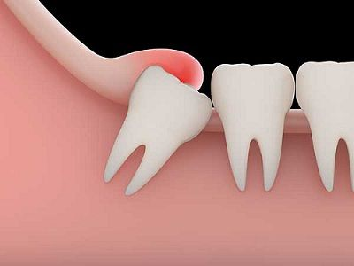Why Do We Have Wisdom Teeth Wisdom Tooth Extraction After Wisdom Teeth Removal Impacted Wisdom Teeth