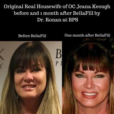 Danville facial plastic surgery