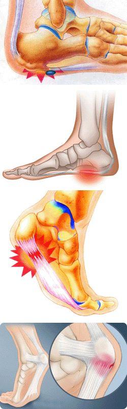 Остеохондроз больно наступать на ногу