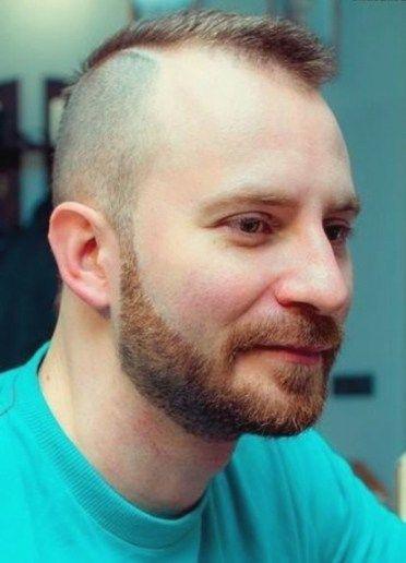 Grosse Glatzenbildung Herren Frisuren Coole Frisuren Haare Manner Haarschnitt Manner