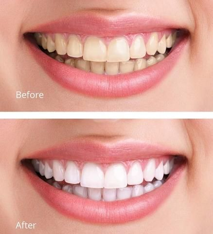 Pin On Homemade Whitening Of Teeth