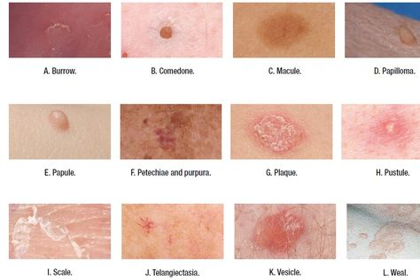 List of Pinterest dermatology terminology pictures
