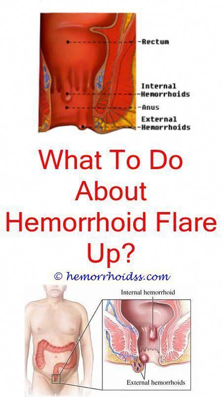 Essential Oils For Animals Hemorrhoid Remedies Hemorrhoids Treatment Bleeding Hemorrhoids