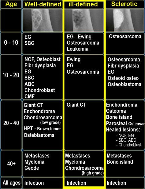 Bone Tumors grouped by age and pattern: well-defined, ill-defined, sclerotic