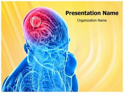 Scientists have used polymer implants to grow new adult brain - brain powerpoint template