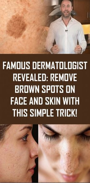 Famous Dermatologist Revealed Remove Brown Spots On Face And
