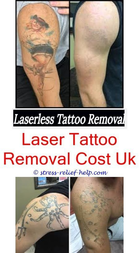 New Laser Tattoo Removal Has Robbie Williams Had Tattoos Removed