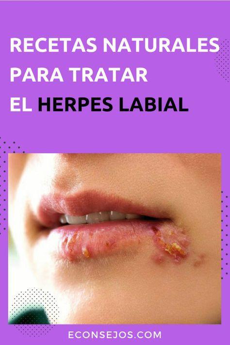 remedios naturales para el herpes de labio