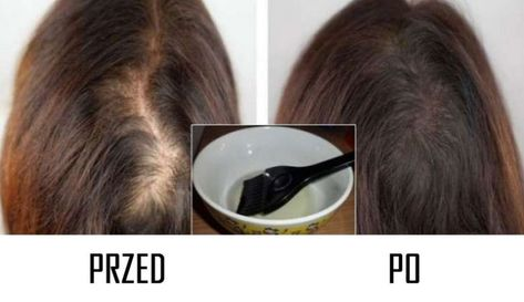 przepis na wypadające włosy