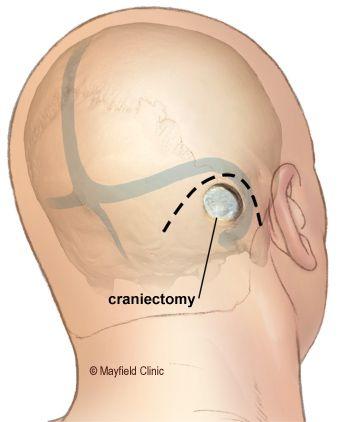 hemifacial spasm artery | Hemifacial Spasm | Facial, Facial muscles