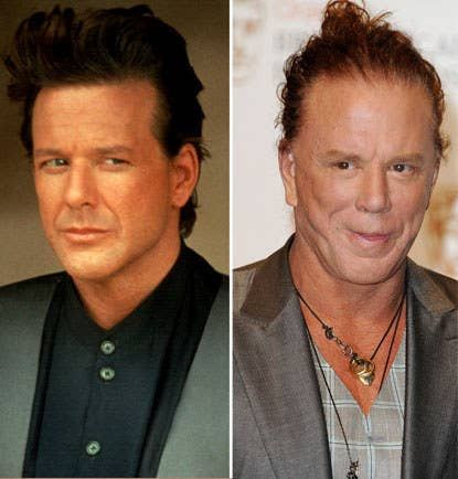 Mickey Rourke Plastic Surgery : The Evolution Of Mickey Rourke Before And After Plastic Surgery. The evolution of mickey rourke before and after plastic surgery.