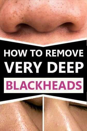 Pin On Skin Blackheads Whiteheads Removal