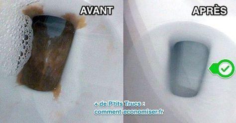 L Astuce Pour Detartrer Le Fond De La Cuvette Des Wc Sans Effort
