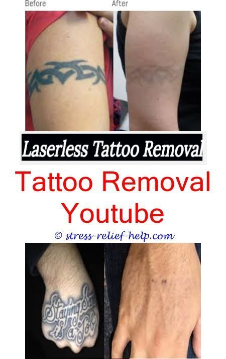 Tattoo Lightening Does Laser Tattoo Removal Cream Work How To
