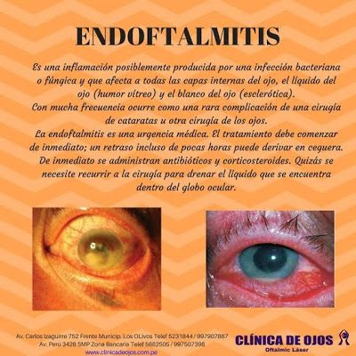 Clinica De Ojos Oftalmic Laser Endoftalmitis Optica Y Optometria Salud Visual Enfermedades Oculares