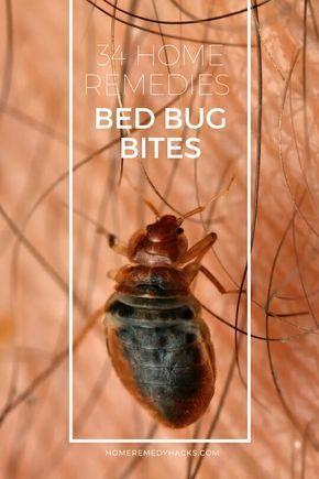 7d924a718a404d13cb682786e9ed06a4 - How To Get Rid Of Bugs Biting Me At Night
