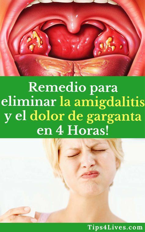 Remedio Para Eliminar La Amigdalitis Y El Dolor De Garganta En 4 Horas Tips Life Vida Salud Remedios Tips4liv Tonsilitis Remedy Sore Throat Health Tips
