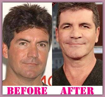 simon cowell facelift without