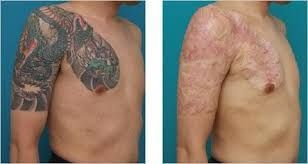 Looking For Laser Tattoo Removal London Belgravia Cosmetic