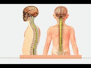مرض Ms وعلاجه احدث علاج للتصلب المتعدد 2019 Https Ift Tt 2opkwyk علاج التصلب المتعدد بالاعشاب وباخدث الطرق فى مصر وامريكا وكل الدول يعد مرض Ms أو كما Bookends