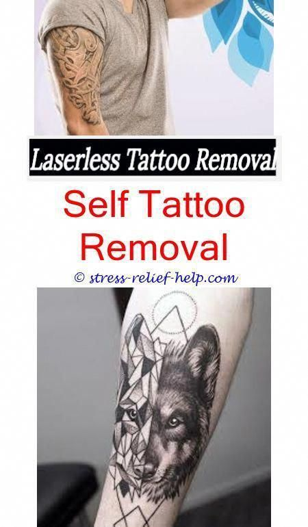 Plastic Surgery Tattoo Removal Non Laser Tattoo Removal Reviews How Do You Remove Triathlon Tattoos Tattoo Re Laser Tattoo Tattoo Removal Tattoo Removal Cost