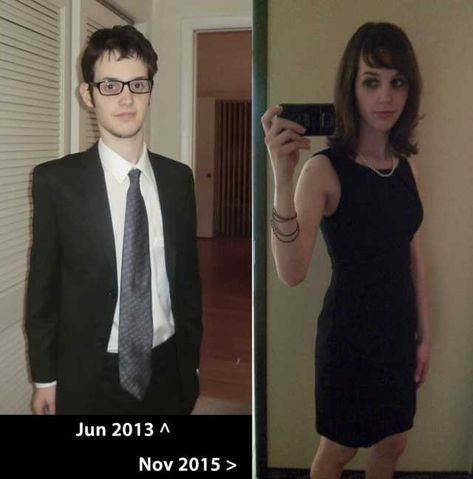 mtf transition before and after