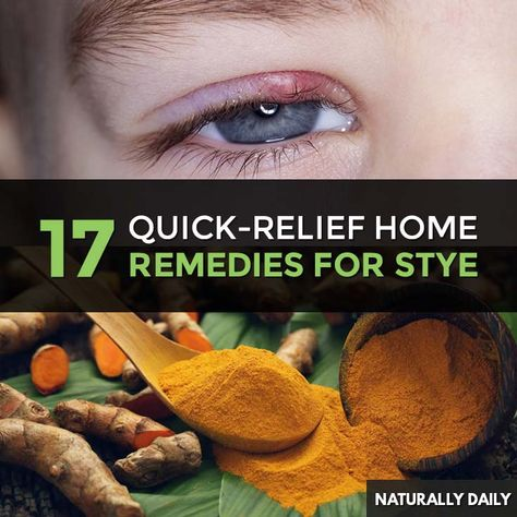 19 Home Remedies For Eye Stye Relief Tips Natural Home Remedies