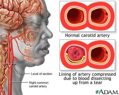 Stroke is the loss of brain function due to blocked blood circulation to the brain. Strokes may be caused by an uncommon type of narrowing, obstruction, or leak in the lining of the carotid artery. This leaking of blood into the artery wall (dissection) may cause a clot to form, reducing blood flow and raising the risk of stroke. The leak may arise from an injury to the neck, which means strokes caused by carotid dissection may occur in young people as well as older people.