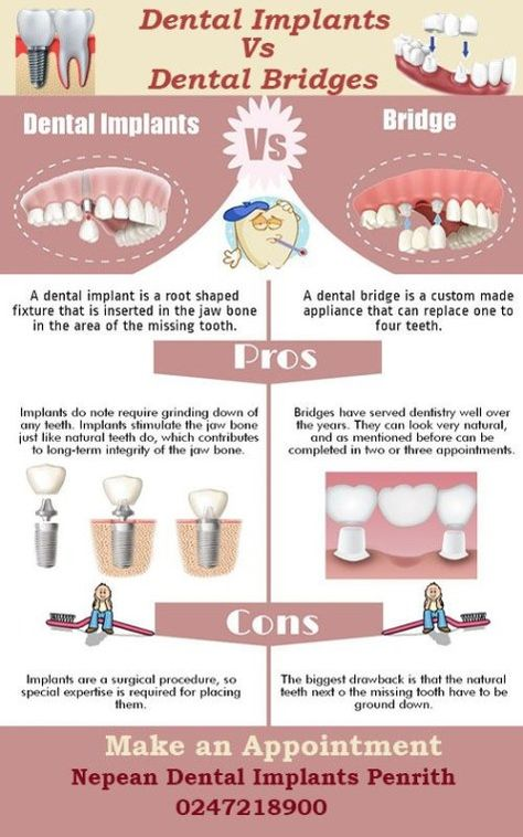 Your Teeth Should Last A Lifetime Therefore It S Crucial For You To Take Good Care Of Them Teeth S Health Dental Bridge Best Dental Implants Dental Implants