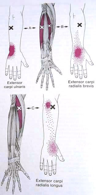 Extensor Carpi Ulnaris Trigger Point Diagram