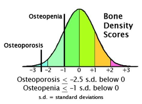 12+ What is the scale for osteoporosis viral