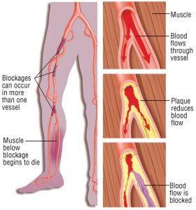 ce durere în revizuirile varicose