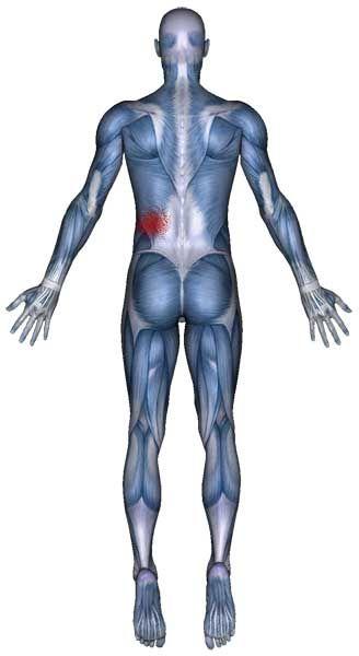 Pain Pattern of the serratus posterior inferior.
