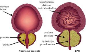 uvecana próstata lecenje