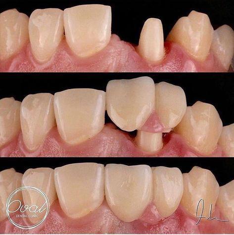 Teethwhiteningtrainerplacid Wisdom Teeth Selfies