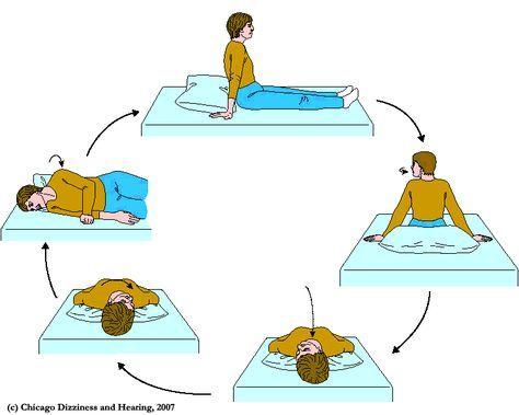 Images Of Exercises Bppv Benign Paroxysmal Positional Vertigo Vertigo Exercises Vertigo Treatment Epley Maneuver
