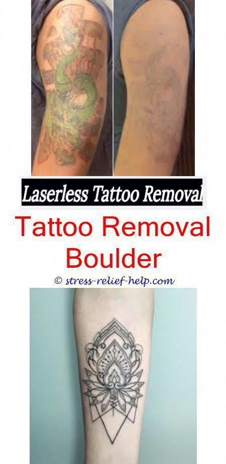 Can Tattoo Removal Ruin Hair How To Remove Temporary Tattoos Easy