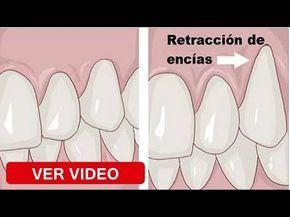 Un Amigo Dentista Me Aconsejó El Mejor Remedio Para Eliminar El Sarro La Gingivitis El Mal Aliento Youtube Remedios Caseros Remedios Salud Natural