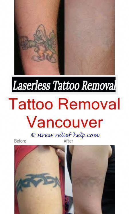 Tattoo Removal Cream Removal Tattoo Removal Cream At Home