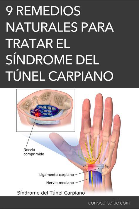 9 Ideas De Ejercicios Y Terapias S Tunel Carpiano Túnel Carpiano Ejercicios Tunel Del Carpo