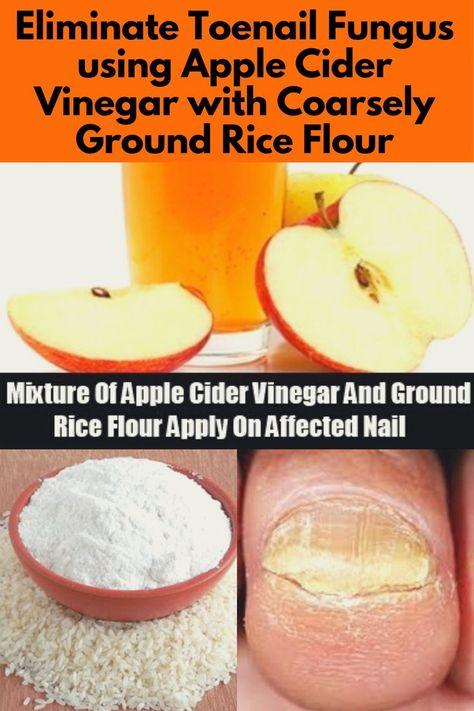 Home Remedy for Nail Fungus: ACV & Rice Flour