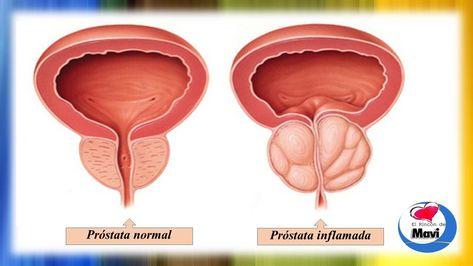 video de tipos de prostatitis